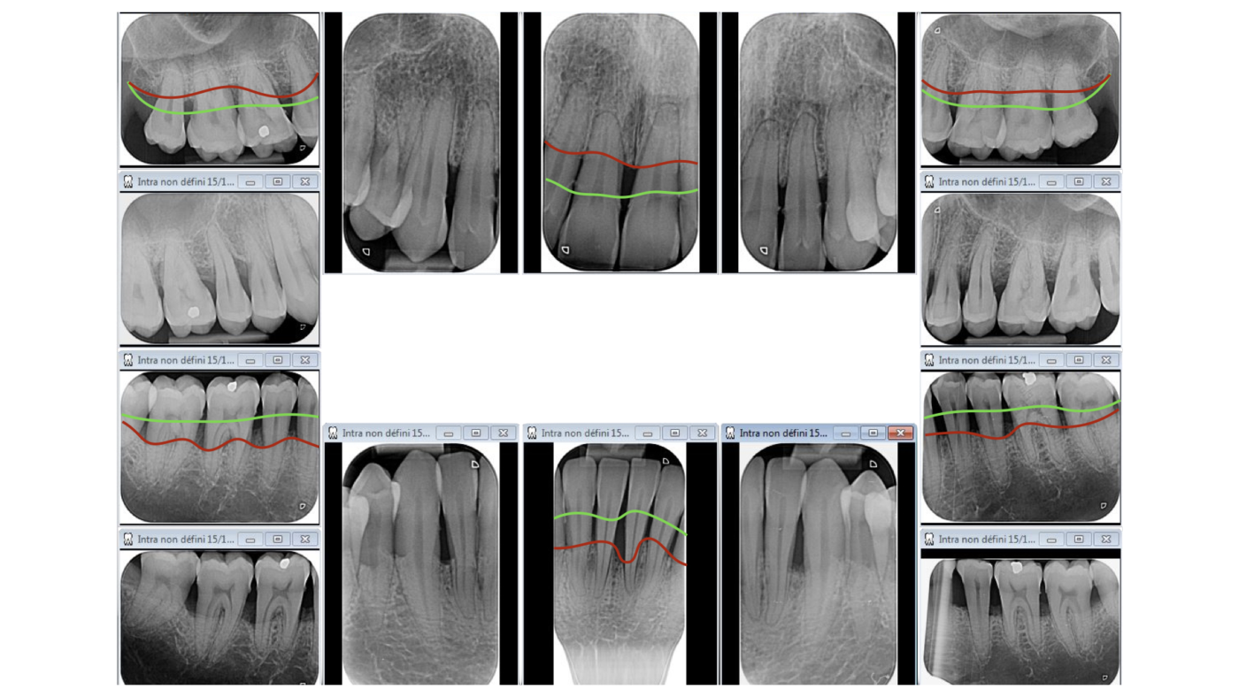 Status rétro-alvéolaire d'une parodontite