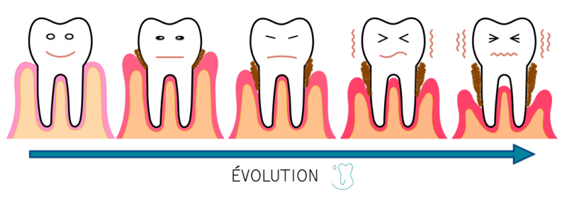 parodontite schéma de l'évolution de la maladie