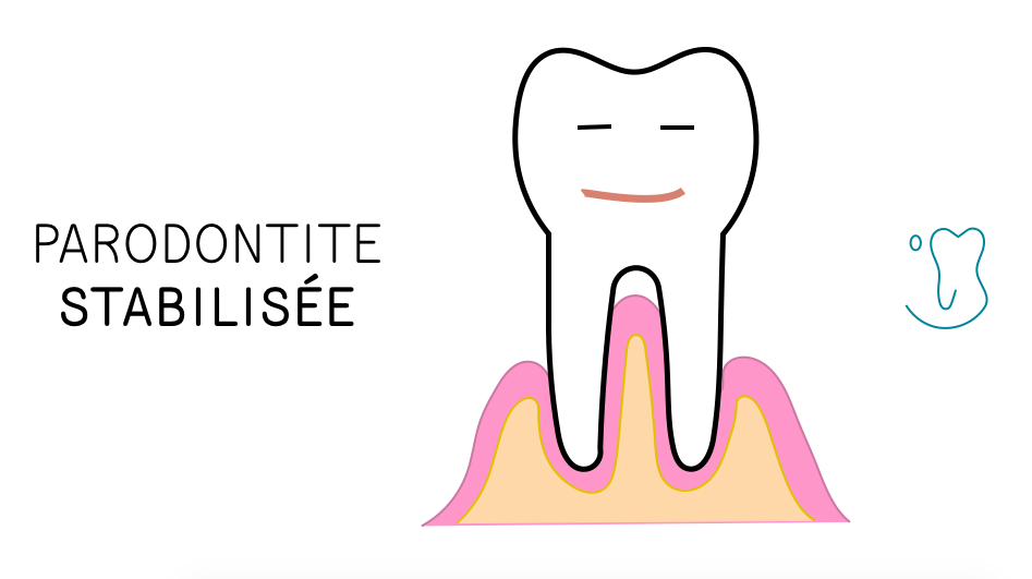 Parodontite stabilisée